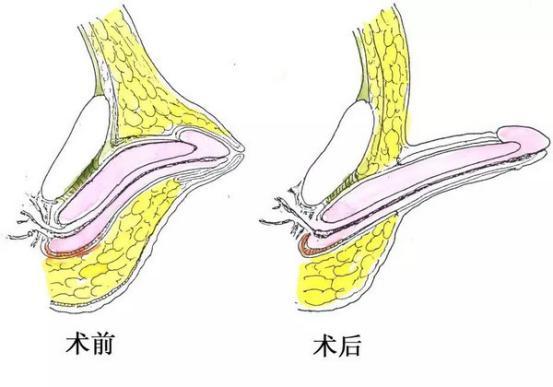 性鸡巴1_隐匿性阴茎手术前后对比图